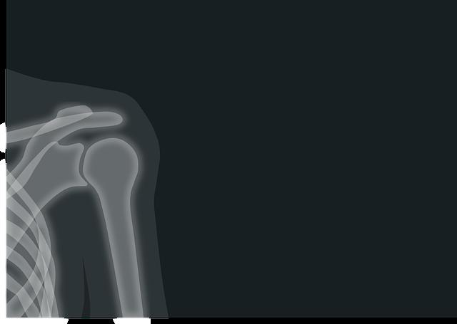 Schulterschnmerzen röntgen