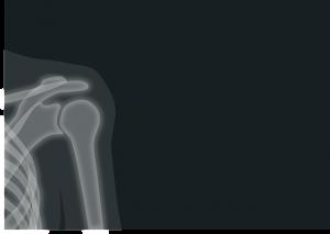 schulter-röntgen